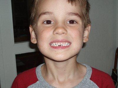 Emanuel tappat första tanden ...